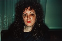 nan one month after being battered by nan goldin