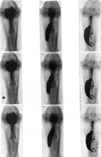 radiochronophotographie de la digestion de la grenouille by jean-ch. roux & balthazard