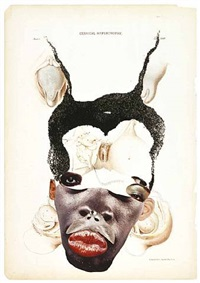 cervical hypertrophy by wangechi mutu