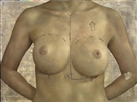 capsulotomy and implant exchange symmetrisation by jonathan yeo